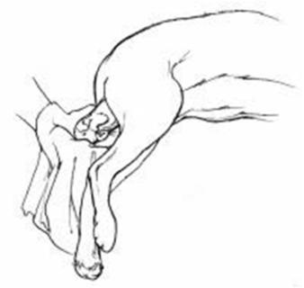 Desenho do parto