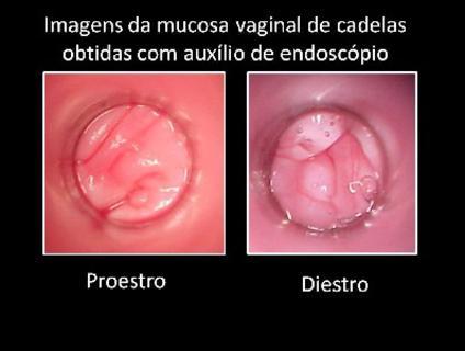 Vaginoscopia